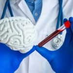 Cholesterol in Brain Regulates Alzheimer's Plaquing