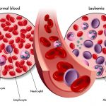 Tracking Cancer Through Blood Biopsy