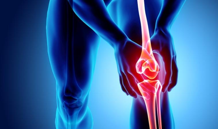 Assessment of PRP Treatment for Osteoarthritis