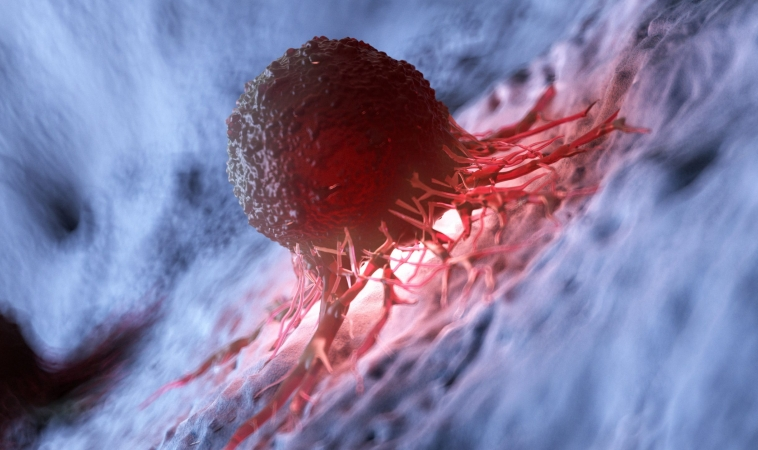 Inflammatory Response to Tumors May Play Bigger Role in Cancer Than Previously Thought