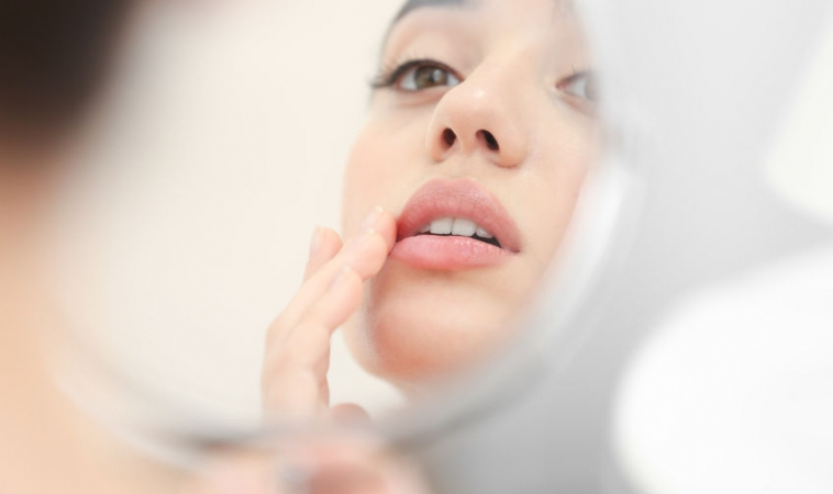 Why Stress Causes Cold Sores to Resurface