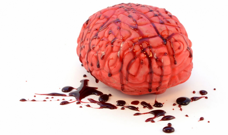 Is Your Brain Leaking?