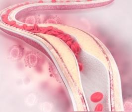 Personalized Cardiac Prevention – Coronary Calcium Score