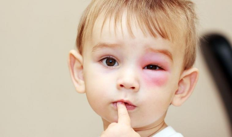 Peanut Allergies and Children