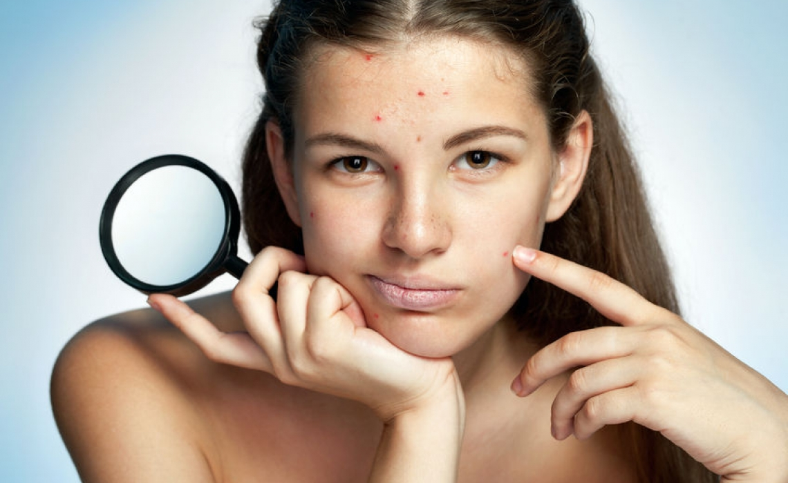 Some Ideas for Prescribing Homeopathics for Rashes: Acne