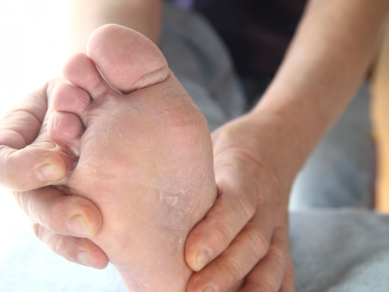 Essential Oil Remedies for Athlete's Foot