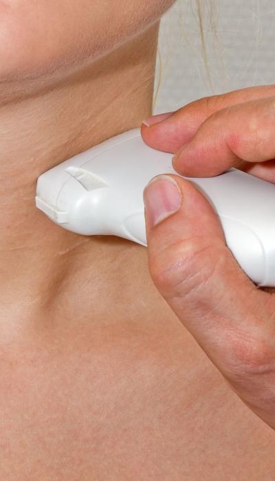 Role of Epstein Barr Virus in Hashimoto's Thyroid Disease