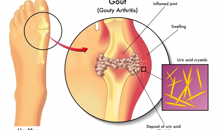 Gout May Increase Risk of Advanced Kidney Disease