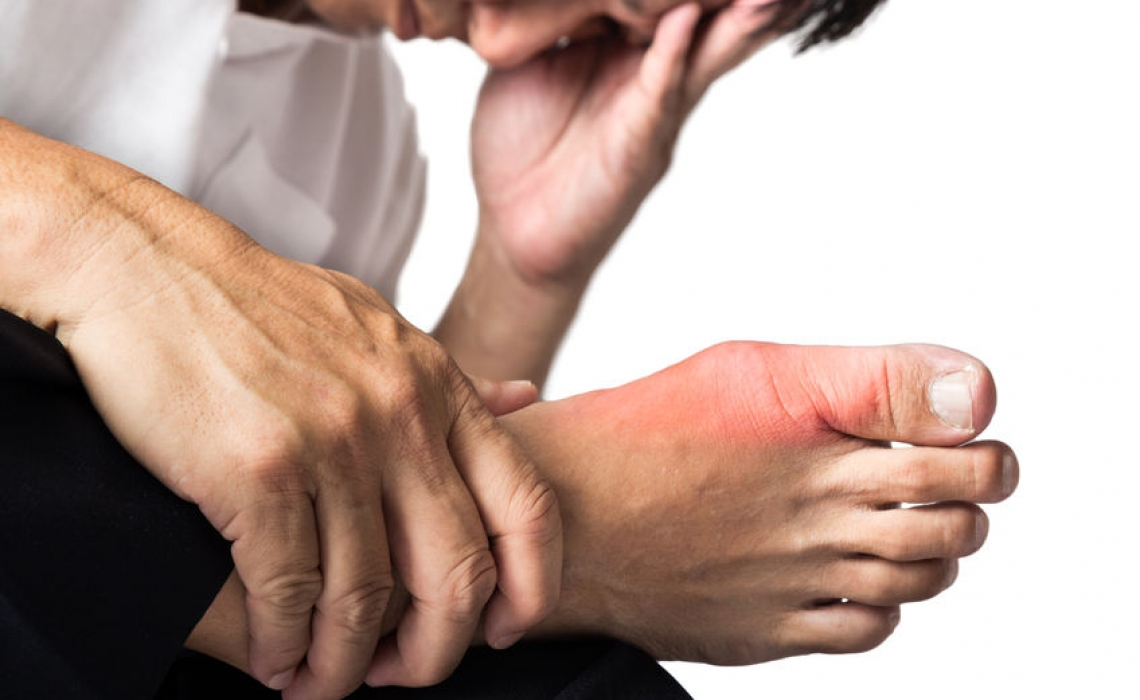 Gout: What's it all About?!