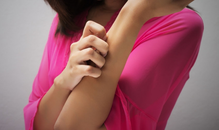 Could Hard Water Contribute to Developing Eczema?