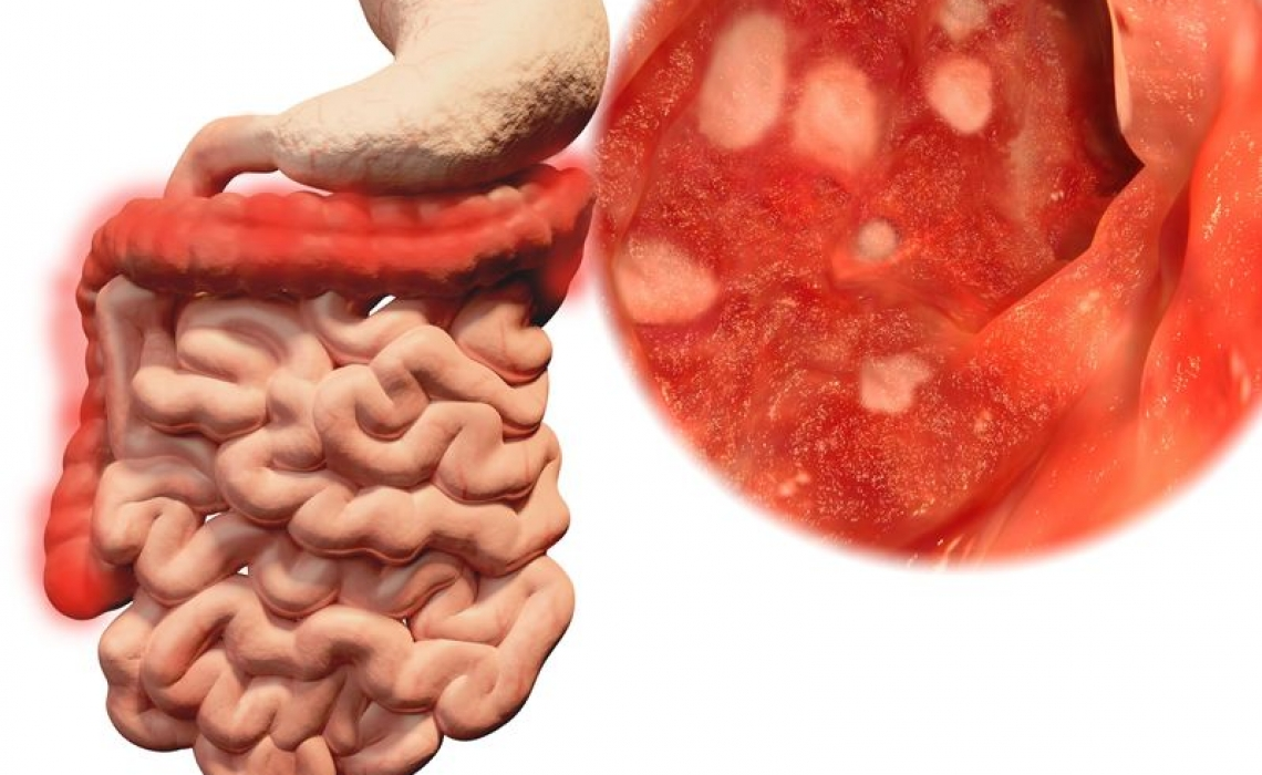 More Research on Healthy Bacteria's Clinical Use in Ulcerative Colitis