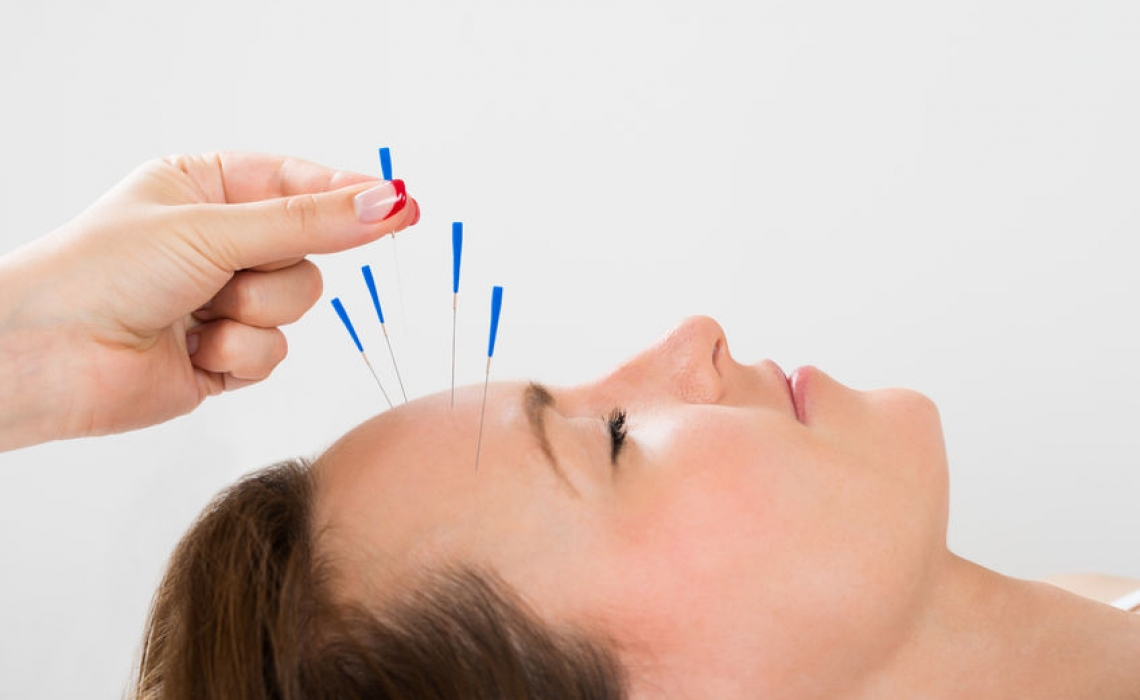 Going Under the Needle: Anti-aging Effects of Acupuncture