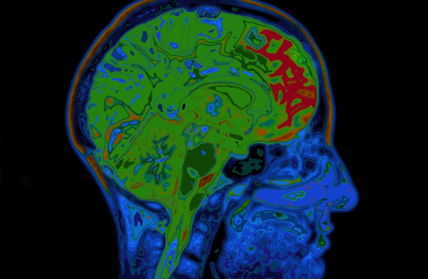 Impact of Crohn's Disease on Brain Function