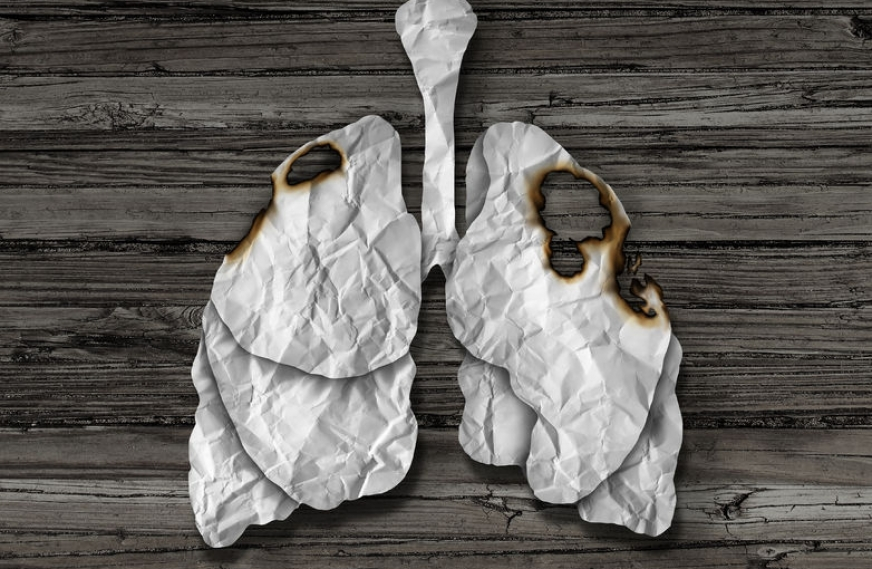 Vitamin B Supplements Could Increase Lung Cancer Risk in Smokers