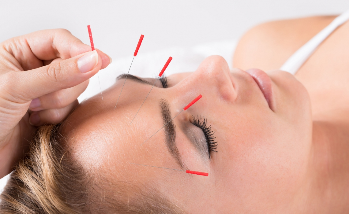 Migraines: Naturally Prevent Them Before They Start