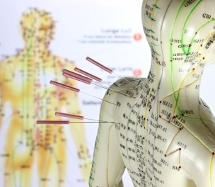 Acupuncture for Common Health Concerns