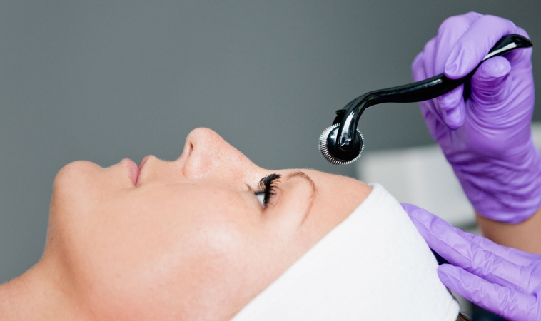 Microneedling for Reducing Acne Scars