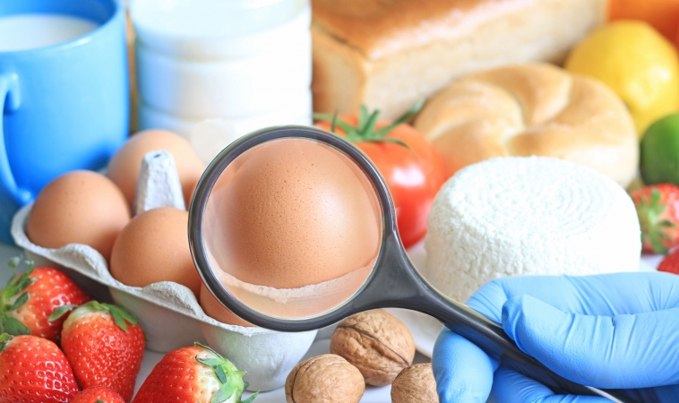 Do You have a Food Allergy, Food Sensitivity or Food Intolerance?