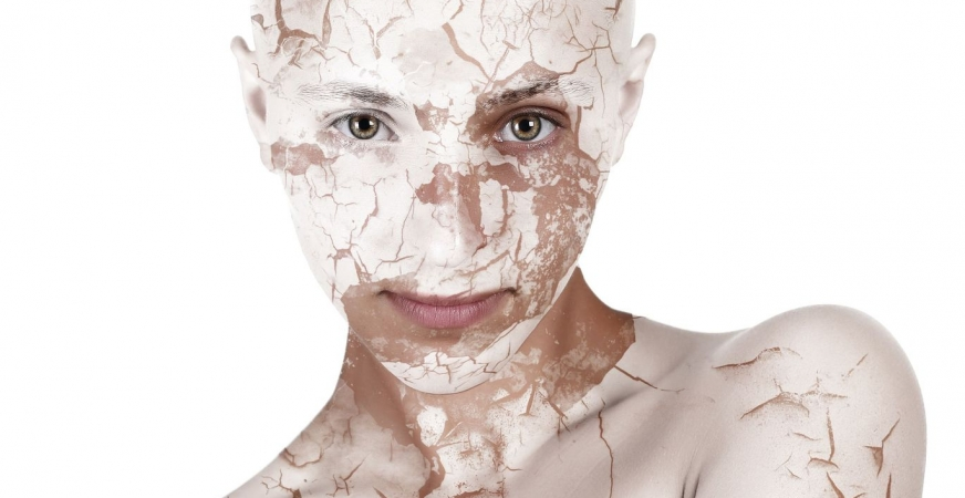 Dry Skin: 5 Ways to Get Rid of It!