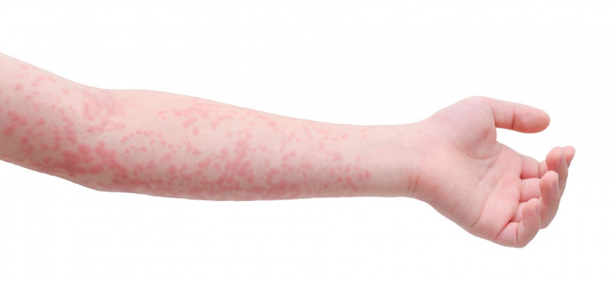 Measles Outbreaks Could be More Common in the Future