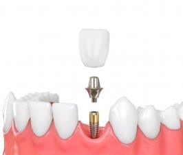 What Would a 'Smart Dental Implant' Look Like?