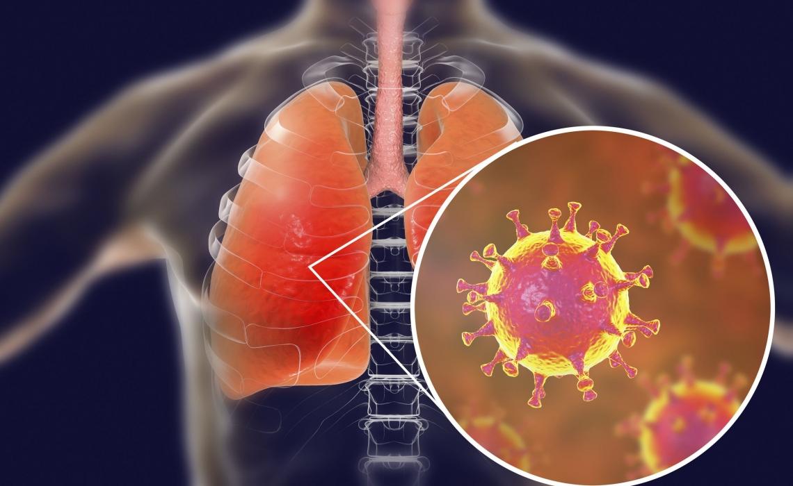 Modeling Study on Coronavirus Spread