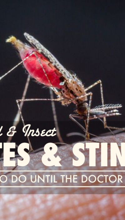 Animal and Insect Bites & Stings