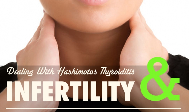 Correlating Factors and Treatment for Hashimotos Thyroiditis and Infertility