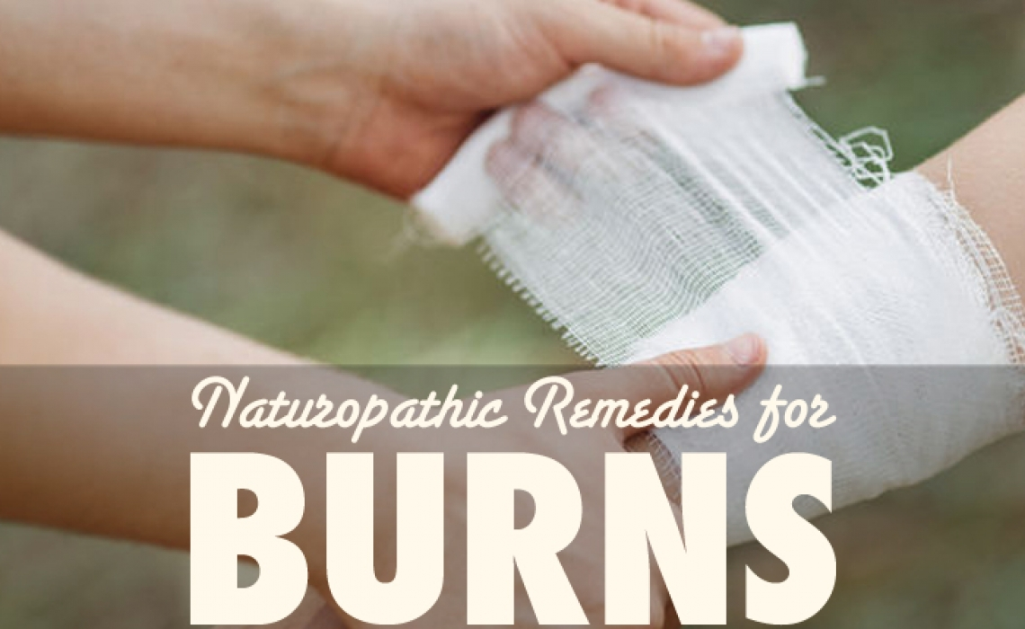 Naturopathic Remedies for Burns