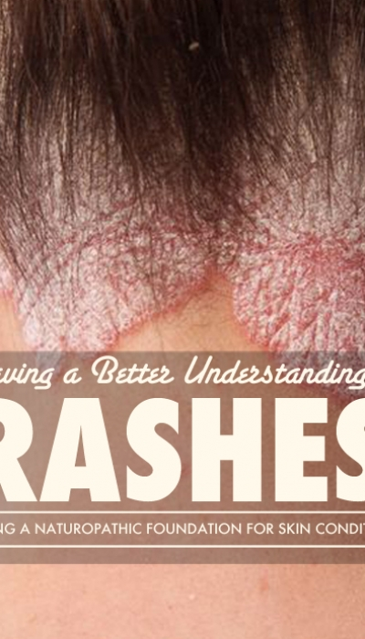 A Rash, is not a Rash, is not a Rash: Part 1