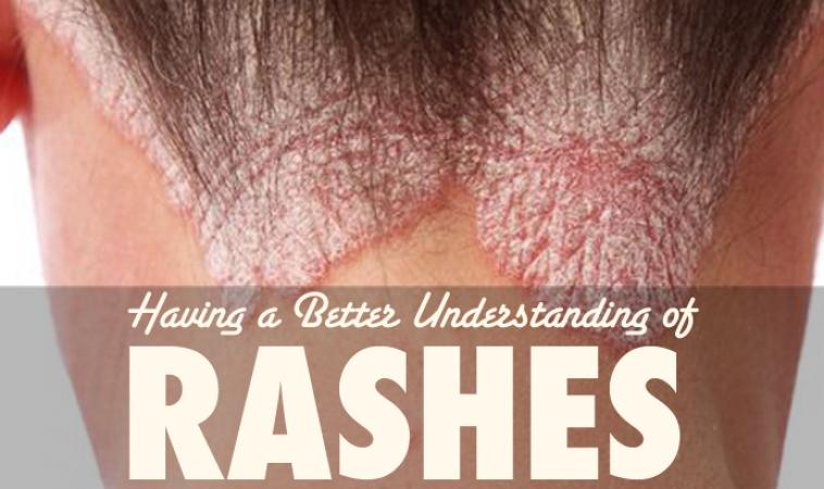 A Rash, is not a Rash, is not a Rash: Part 1