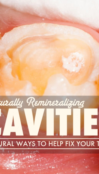 Remineralizing Cavities Naturally
