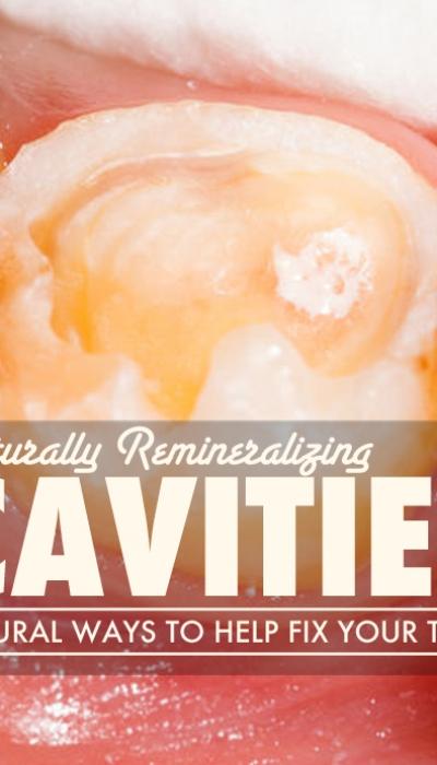 Remineralizing Cavities Naturally