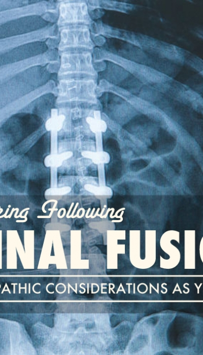 Recovering After Spinal Fusion